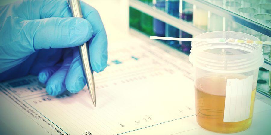 LE CBD PEUT-IL VOUS FAIRE RATER UN TEST DE DÉPISTAGE DES DROGUES ?