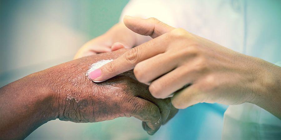 Cosmétiques De CBD & Psoriasis