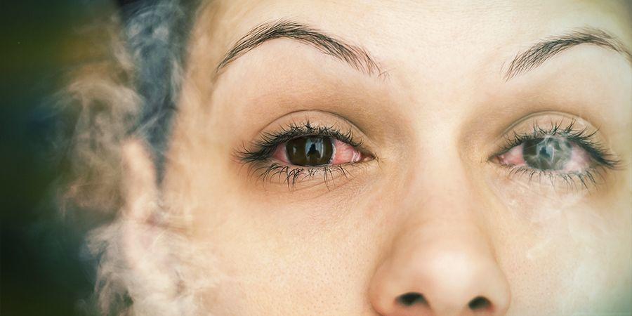 QUELLE EST LA CAUSE DES YEUX ROUGES ? cannabis