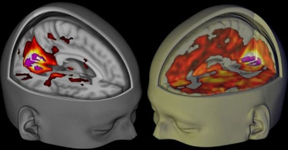 Cerveau sur LSD
