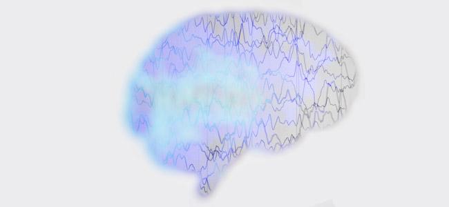 CBD et l'épilepsie